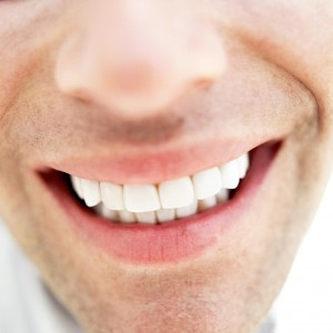 teeth-whitening-man